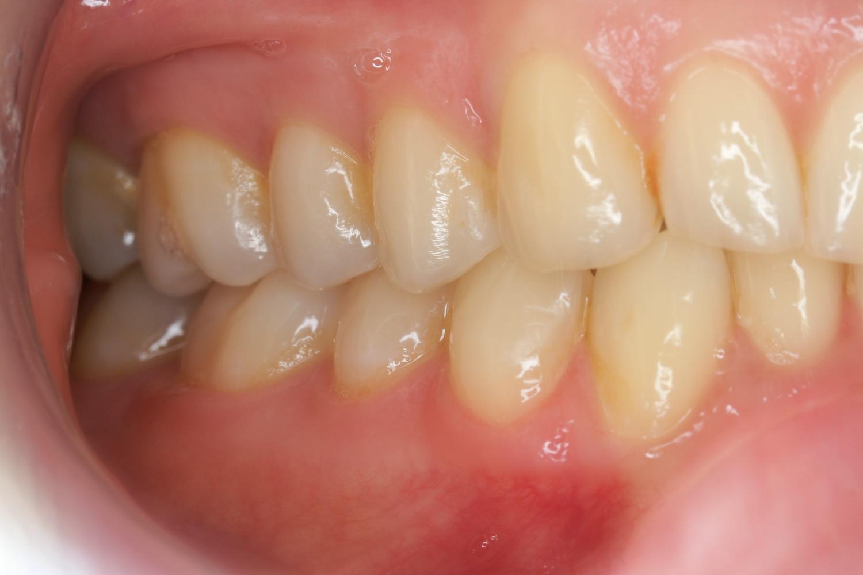 Seitenzähne rechts