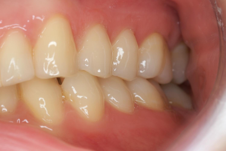 Seitenzähne links pano